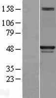 NBL1-15995 - SKP2 Lysate