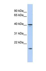 NBP1-70704 - SLAIN1