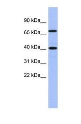 NBP1-55242 - SLAIN2