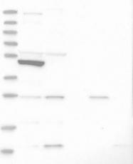 NBP1-84957 - SLC10A3 / P3 protein