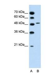 NBP1-59707 - SLC10A5
