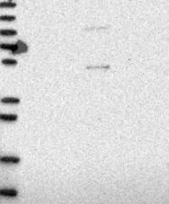 NBP1-85965 - SLC10A5