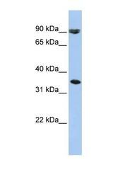 NBP1-59875 - SLC10A7