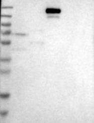 NBP1-82559 - SLC12A1