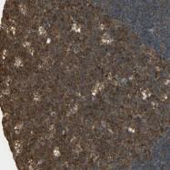 NBP1-81561 - SLC12A5