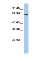 NBP1-62518 - SLC13A2 / NADC1