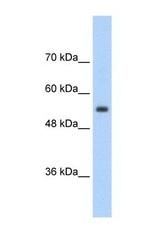 NBP1-60011 - SLC13A3 / NADC3