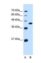 NBP1-60115 - SLC14A1