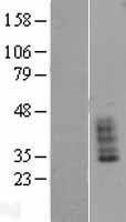 NBL1-16011 - SLC14A1 Lysate
