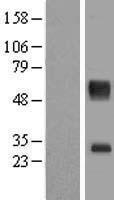 NBL1-16014 - SLC16A11 Lysate