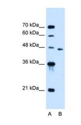 NBP1-59530 - SLC16A12
