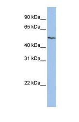 NBP1-59881 - SLC16A6 / MCT7