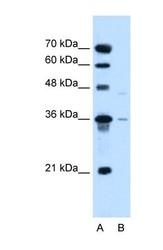 NBP1-60014 - SLC17A3 / NPT4