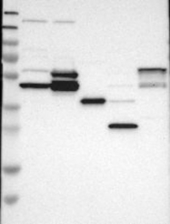 NBP1-82535 - SLC17A3 / NPT4