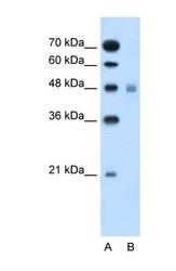 NBP1-59883 - SLC17A4