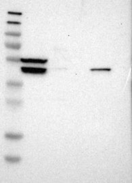 NBP1-86944 - SLC19A2 / THTR1