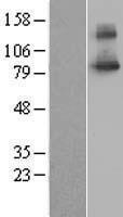 NBL1-16028 - SLC20A1 Lysate