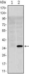 NBP1-51684 - SLC22A1 / OCT1
