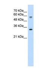 NBP1-59419 - SLC22A1 / OCT1