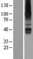 NBL1-16031 - SLC22A12 Lysate