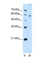 NBP1-59451 - SLC22A2 / OCT2