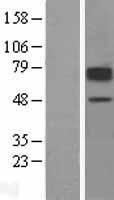 NBL1-16035 - SLC22A2 Lysate