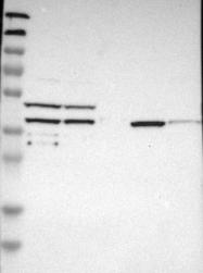 NBP1-91154 - SLC22A23