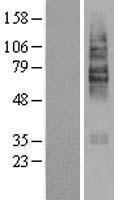 NBL1-16037 - SLC22A5 Lysate