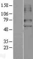 NBL1-16038 - SLC22A6 Lysate