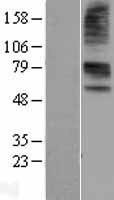NBL1-16039 - SLC22A6 Lysate