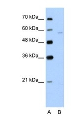 NBP1-62660 - SLC22A7 / OAT2