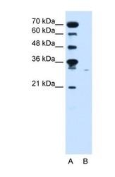 NBP1-69691 - SLC22A7 / OAT2