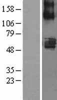 NBL1-16040 - SLC22A7 Lysate