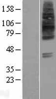 NBL1-16042 - SLC22A8 Lysate