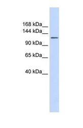 NBP1-62521 - SLC24A1