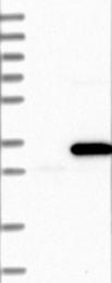 NBP1-85214 - mDIC