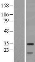 NBL1-16046 - SLC25A10 Lysate