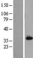 NBL1-16047 - SLC25A11 Lysate