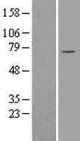 NBL1-16048 - SLC25A12 Lysate