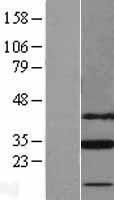 NBL1-16053 - SLC25A18 Lysate