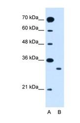 NBP1-59603 - SLC25A22 / GC1