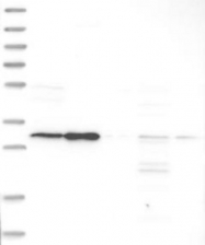 NBP1-84880 - SLC25A22 / GC1