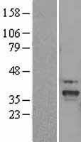 NBL1-16055 - SLC25A22 Lysate