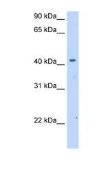 NBP1-60063 - SLC25A24 / SCAMC1