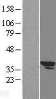 NBL1-16057 - SLC25A3 Lysate