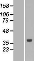 NBL1-16058 - SLC25A3 Lysate