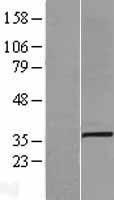 NBL1-16059 - SLC25A3 Lysate