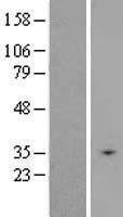 NBL1-16060 - SLC25A31 Lysate
