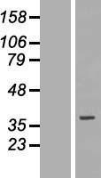 NBL1-16061 - SLC25A32 Lysate