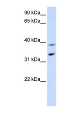 NBP1-59607 - SLC25A34